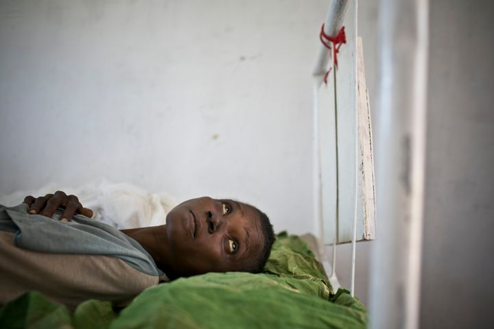 A woman who was co-infected with tuberculosis and HIV is hospitalized in the TB ward operating under MSF-France in Carnot Hos