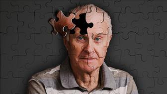 alzheimer's, memory loss and senile dementure