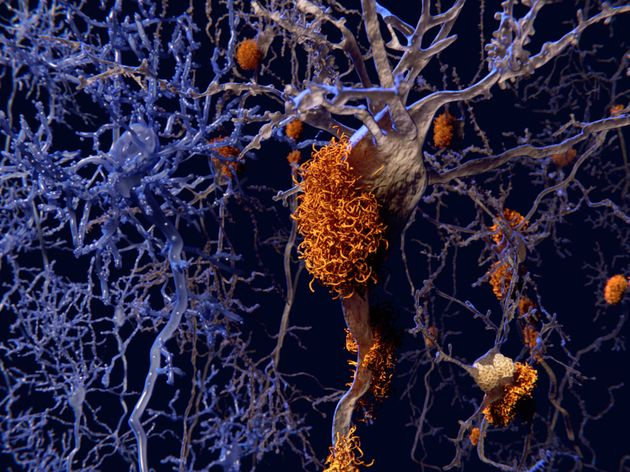 Researchers Detect Symptoms Of Alzheimer's 17 YEARS Earlier Than
