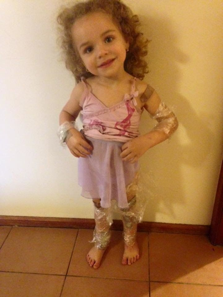 Jazmyn is now recovering after having skin grafts