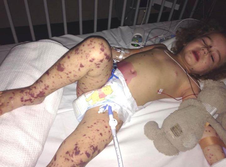 Jazmyn had dark spots all over her body