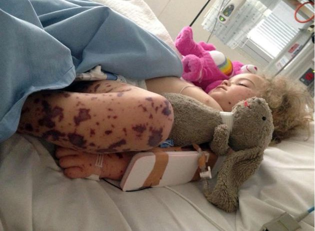 Graphic Images: Parents Release Photos Of Daughter With Life-Threatening Meningococcal B To Raise