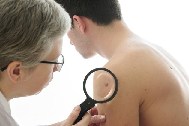 Powerful New Drugs Capable Of Stalling Skin Cancer Available In England And Wales For First