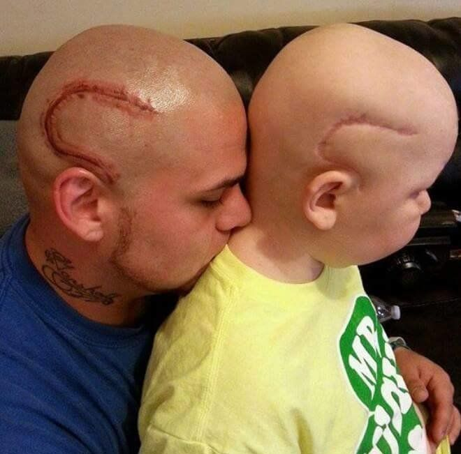 Best Dad Ever Gets Sons Scar From Cancer Tattooed In Same Place