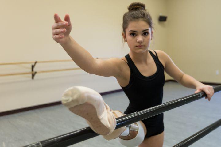 Gabi Shull can dances again thanks to groundbreaking surgery.