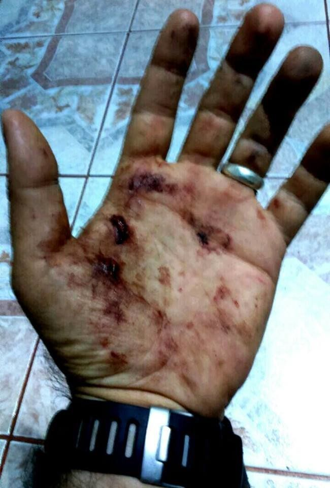 Adham showed his scars from the blast on Facebook.