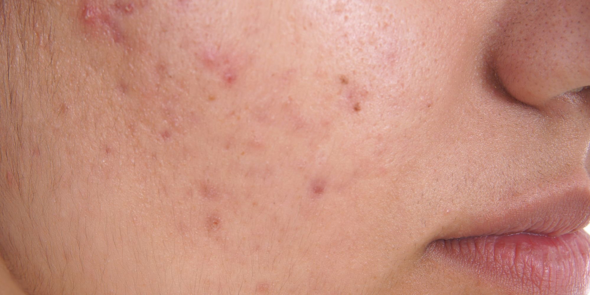 acne adult prevention