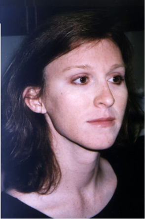 Facial feminization results photo, office of Dr. Douglas Ousterhout, 1997.