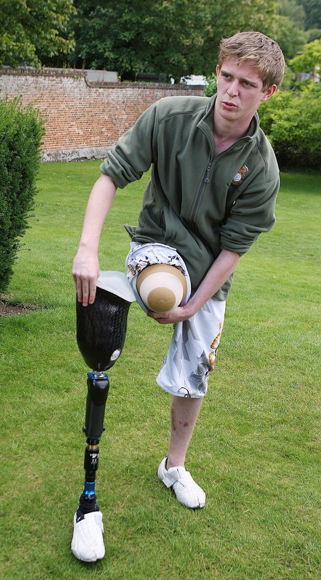 Private Chris Herbert, 19, from the Territorial Army 4th Battalion Yorkshire Regiment shows his injured...