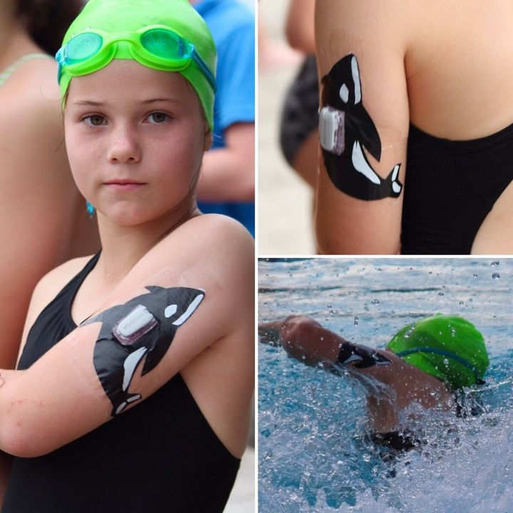 David Engler decorated his daughter Claire's diabetes device for her swim meet.