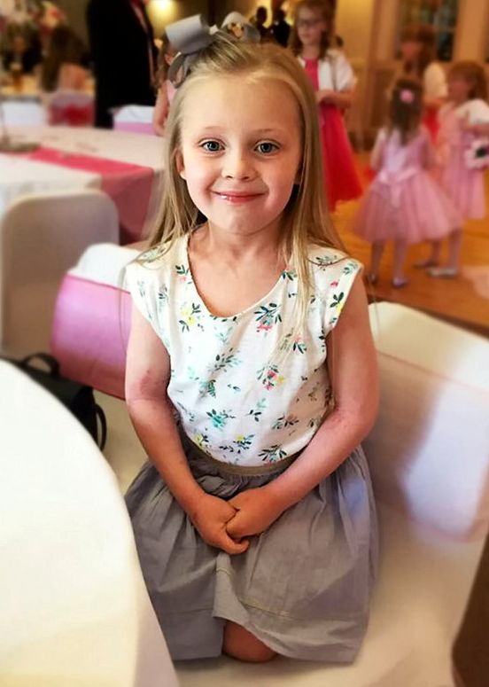 Parents Release Graphic Images Of Seven-Year-Old With Meningitis To Raise Awareness Of The