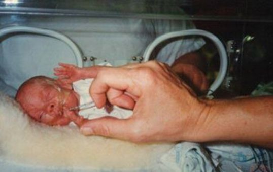 His sister when she was born 15 weeks early.