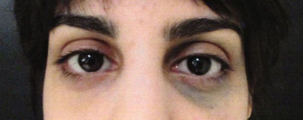 Woman Has 'Black Eye' Birthmark Removed To End Harassment From