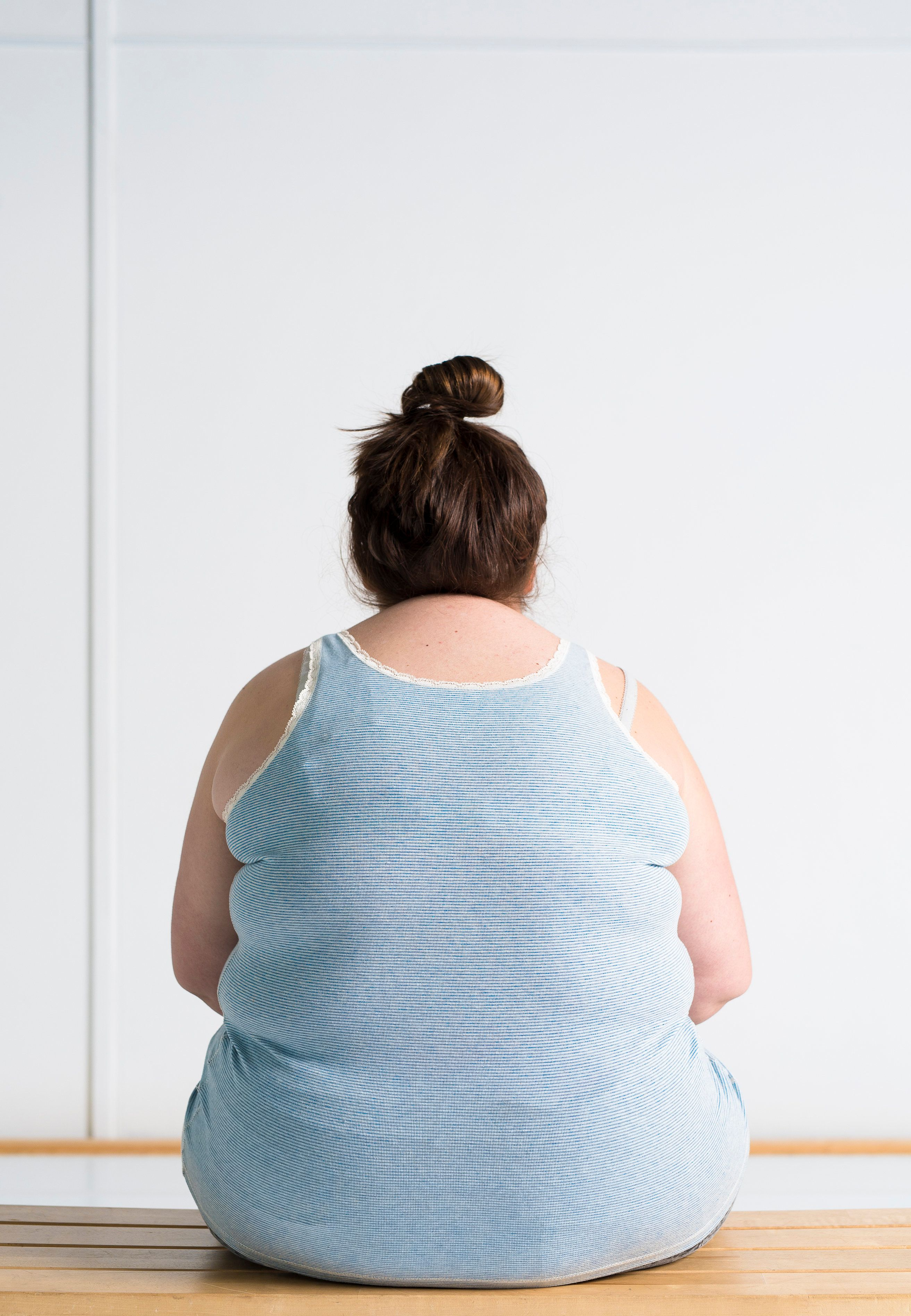 Obesity Linked To 'Reduced Cognitive Performance And Self-Control', Study