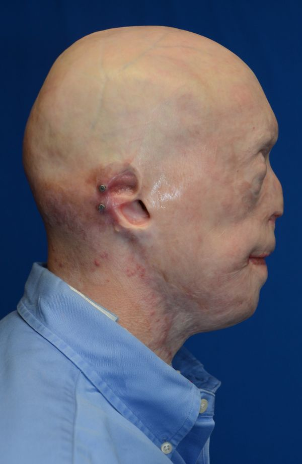 The outer parts of Hardison's ears had been severely burned, so he had been fitted with prosthetic ears (not shown here) that