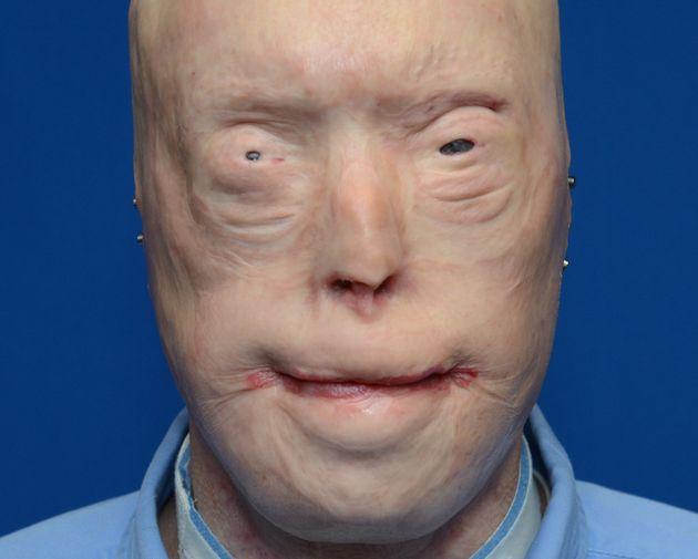 Patrick Hardison before his face transplant