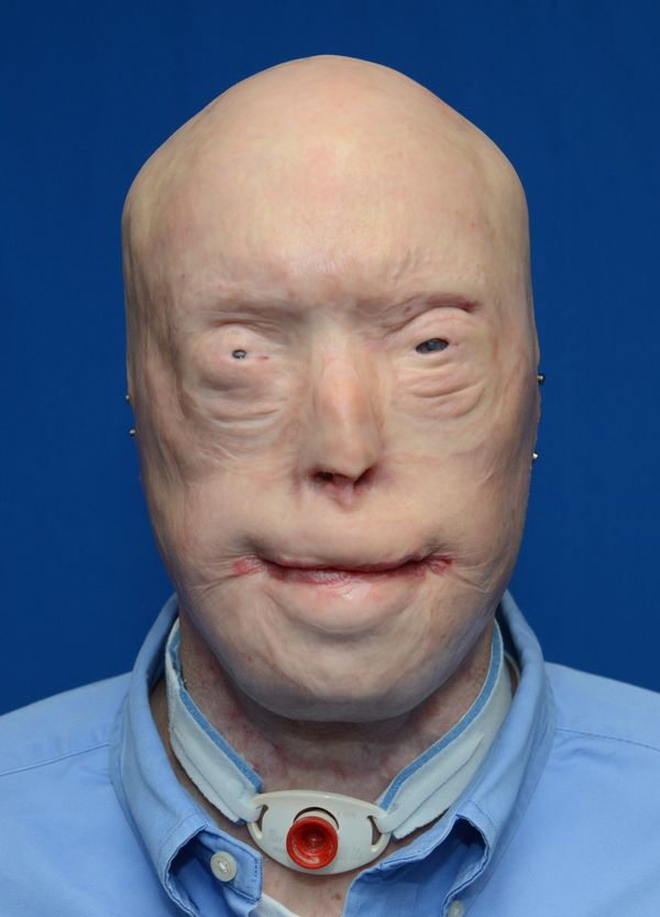Patrick Hardison before the face transplant surgery. At this point he had already undergone more than 70 surgical procedures