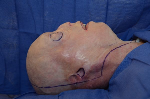 Hardison just before surgery, with marks indicating where the incisions were to be made. The procedure took about 26 hou