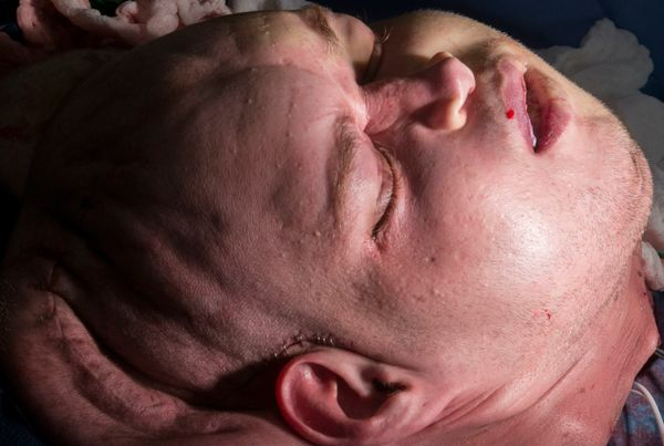 Hardison immediately after the carotid artery and the internal jugular vein on the right side of his new face had been c