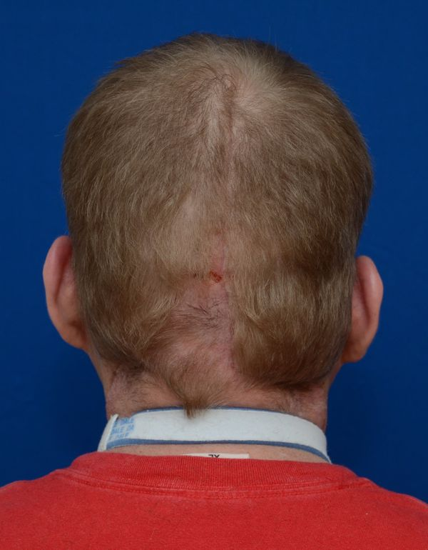 The scar where the surgeons stitched on the new face and scalp is visible at the back of Hardison's head.