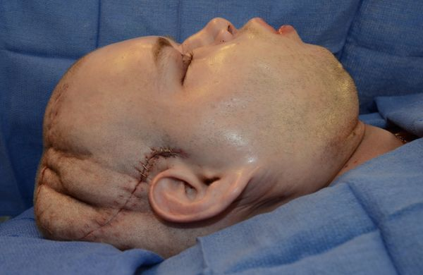 Hardisonimmediately after surgery. The swellingwas expected. It's part of the recovery process.