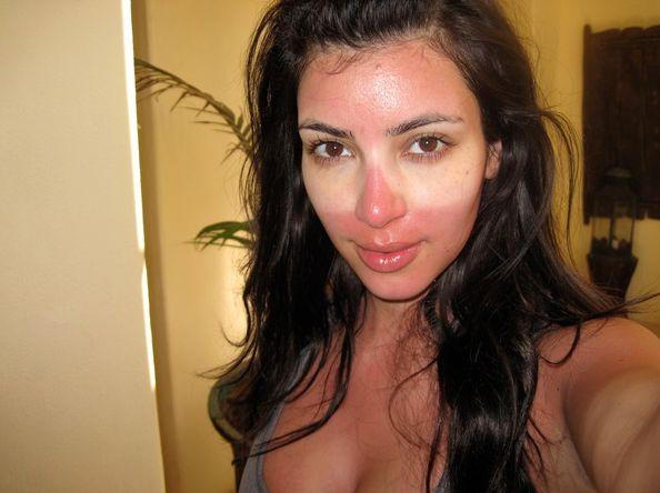 4 Beauty Products To Help Heal Sunburn Fast