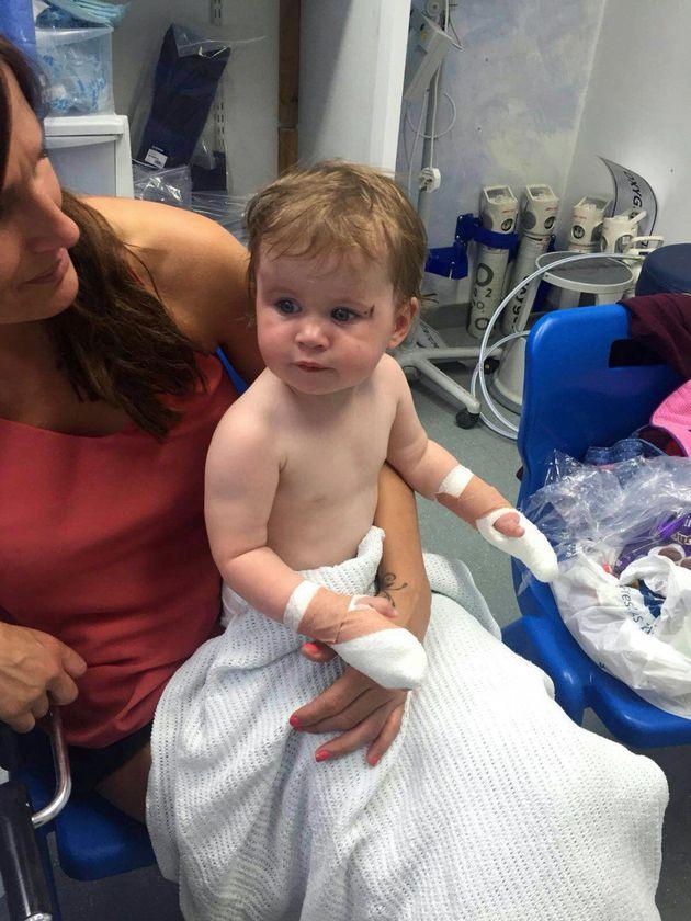 Mum Warns Of Heatwave Danger After Toddler Badly Burned By Metal Skate Ramp In