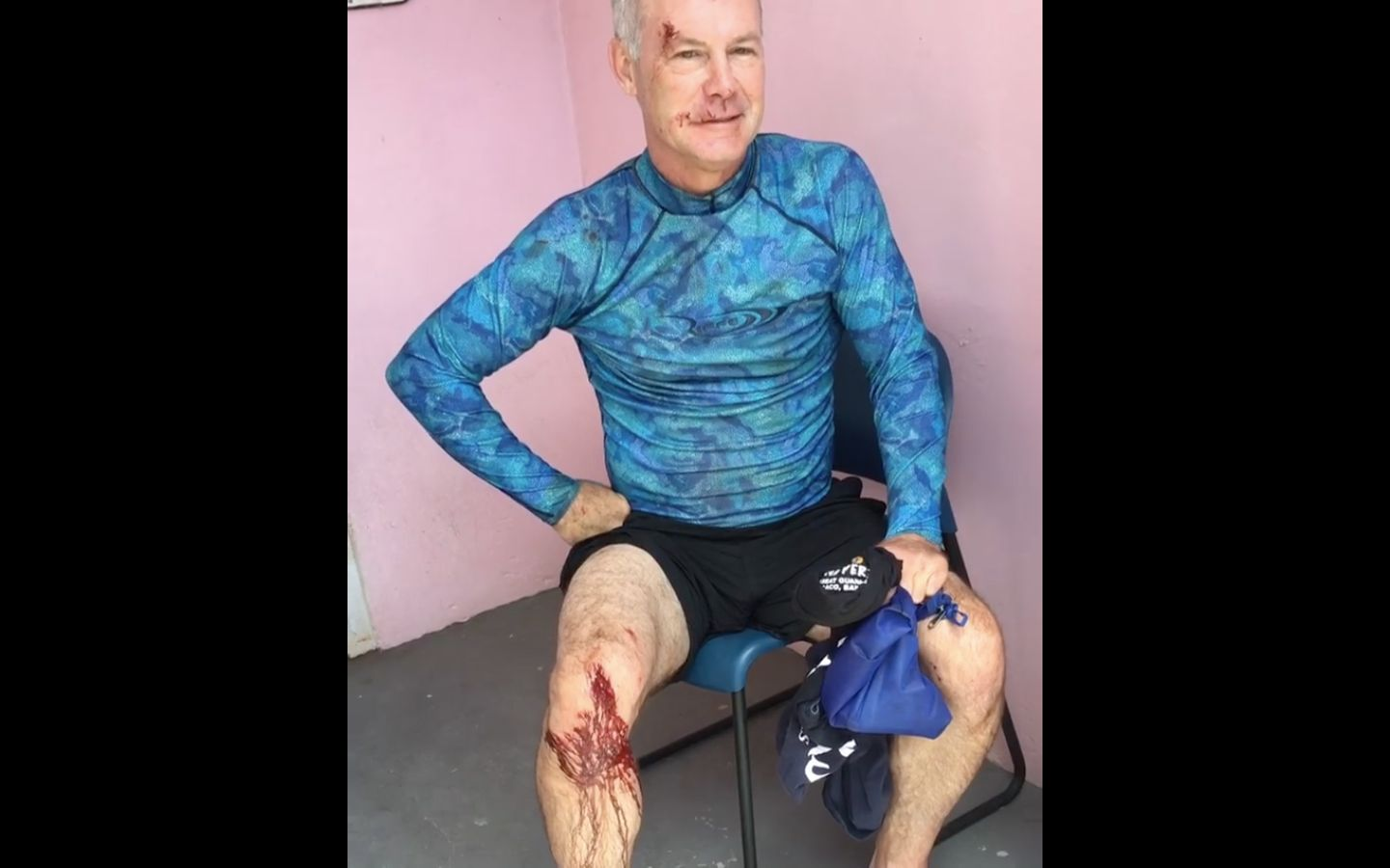 Dentist Shows Off Gruesome Injures After Shark Attack In The