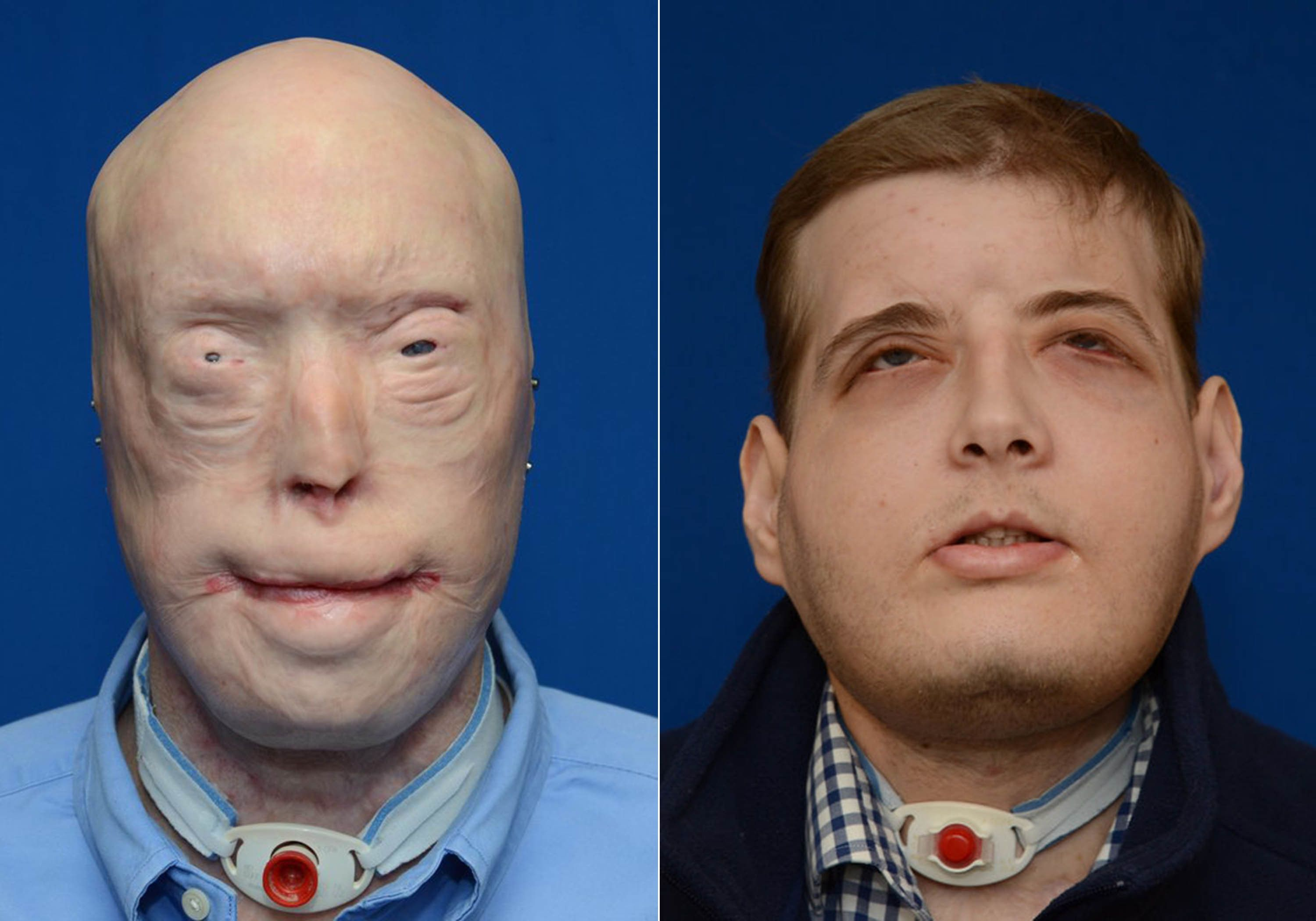 Patrick Hardison prior to his face transplant surgery (left) and in February 2016, about six months after