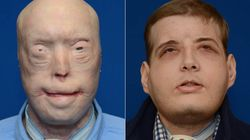 Graphic New Photos Of Face Transplant Show Burn Patient's Remarkable