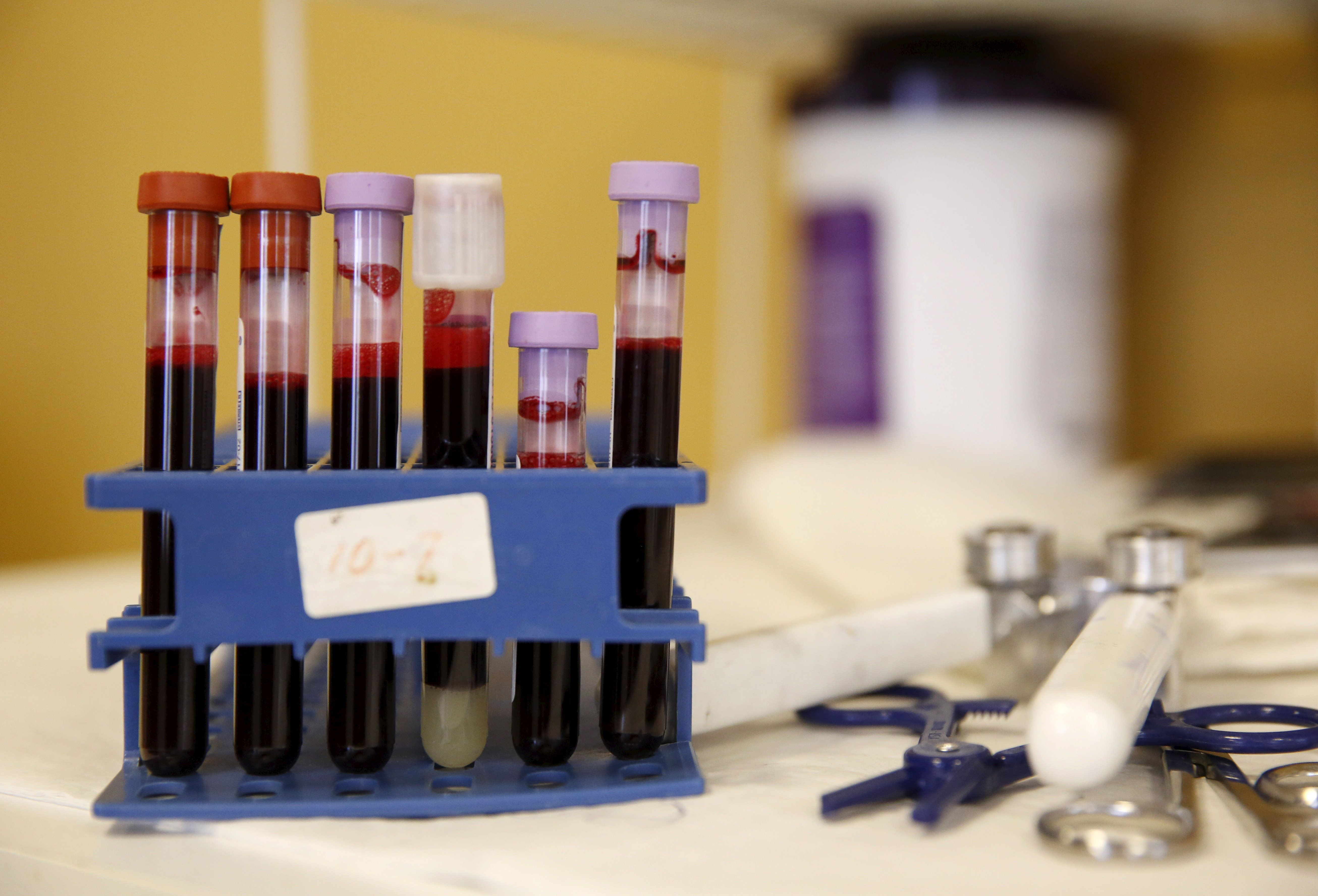 Testing tubes full of blood are seen at the American Red Cross Charles Drew Donation Center in Washington February 16, 2016. To match HEALTH-ZIKA/BLOOD    REUTERS/Gary Cameron
