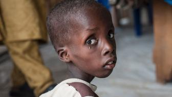 TOPSHOT - This photo taken on June 30, 2016 shows a boy suffering from severe acute malnutrition sitting at one of the Unicef nutrition clinics, in the Muna informal settlement, which houses nearly 16,000 IDPs (internally displaced people) in the outskirts of Maiduguri capital of Borno State, northeastern Nigeria.    Nigeria has pledged to do more to tackle food shortages among people made homeless by Boko Haram, as the United Nations warned some 50,000 children could starve to death this year in one northeastern state alone. / AFP / STEFAN HEUNIS        (Photo credit should read STEFAN HEUNIS/AFP/Getty Images)