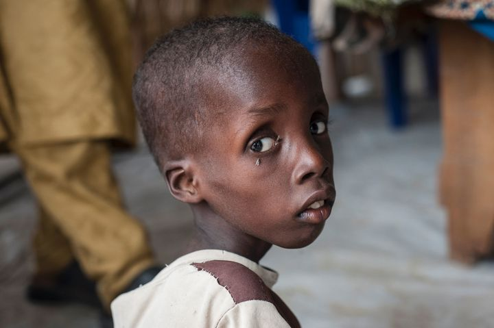 A boy suffering from severe acute malnutrition at one of UNICEF's nutrition clinics in the Muna informal settlement on t
