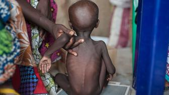 TOPSHOT - This photo taken on June 30, 2016 shows a young girl suffering from severe acute malnutrition getting weighed at one of the Unicef nutrition clinics, in the Muna informal settlement, which houses nearly 16,000 IDPs (internally displaced people) in the outskirts of Maiduguri capital of Borno State, northeastern Nigeria.    Nigeria has pledged to do more to tackle food shortages among people made homeless by Boko Haram, as the United Nations warned some 50,000 children could starve to death this year in one northeastern state alone. / AFP / STEFAN HEUNIS        (Photo credit should read STEFAN HEUNIS/AFP/Getty Images)