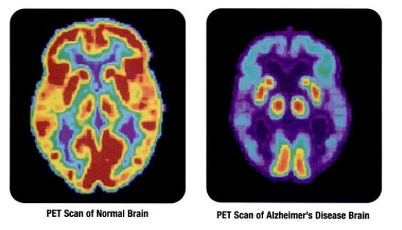 PET scans showing the differences between a normal older adult's brain and the brain of an older adult afflicted with Alzheim