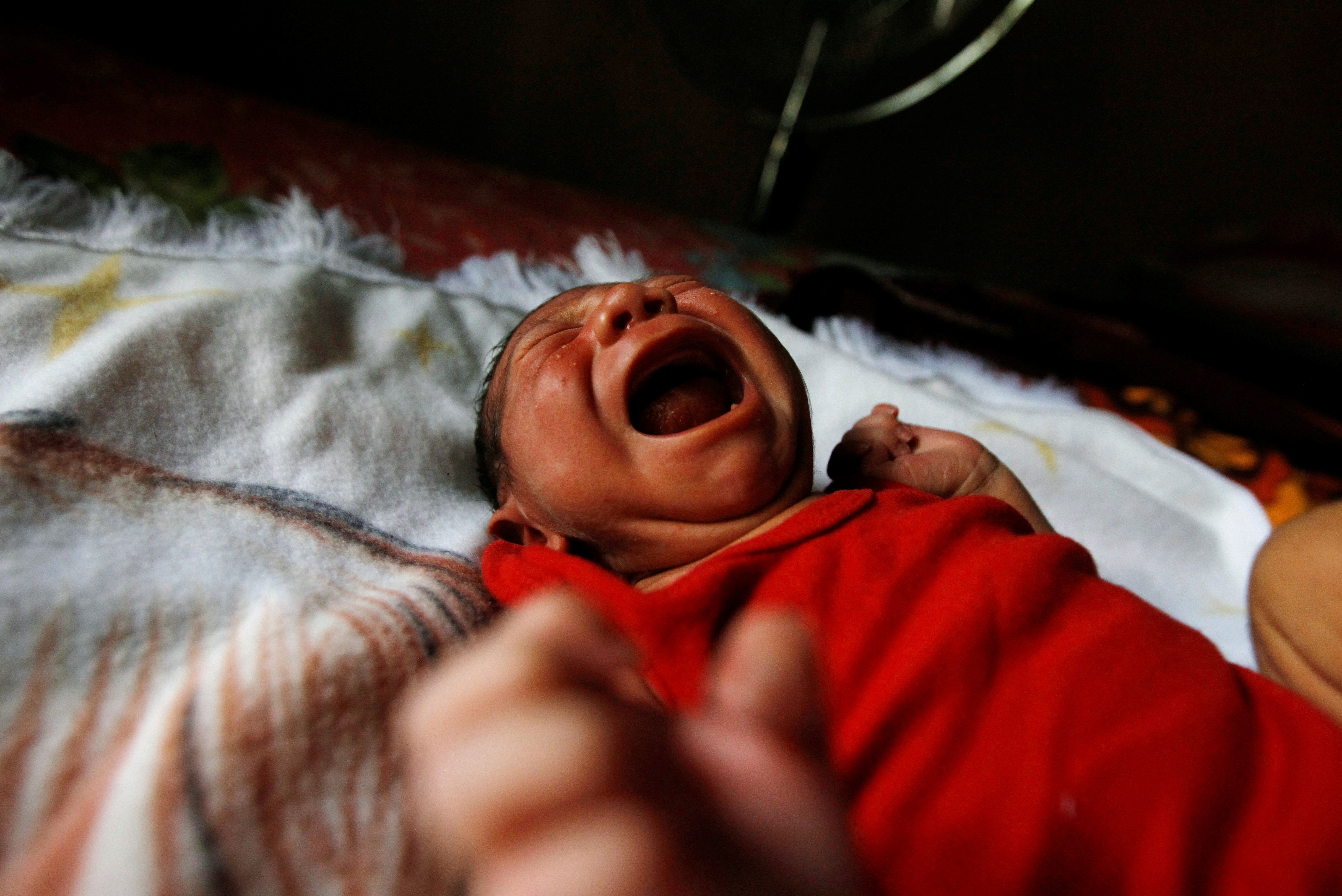 Eight-day old baby Allan, who was born with microcephaly, cries at home in Choluteca, Honduras, July 29, 2016.