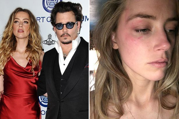 Heard claims that Depp abused her for years during their marriage.