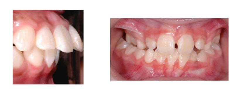 Jaw abnormalities found in children: mandibular retrognathia, enlarged over-jet, lateral crossbite