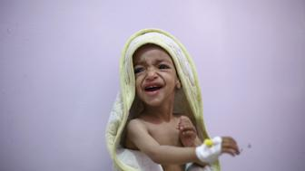 A malnourished boy cries as he sits on a bed at a malnutrition intensive care unit in Yemen's capital Sanaa February 10, 2016. REUTERS/Khaled Abdullah      TPX IMAGES OF THE DAY