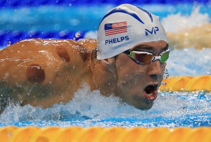 Michael Phelps competes at the Rio Olympics with circular bruises from cupping on his shoulders and back.