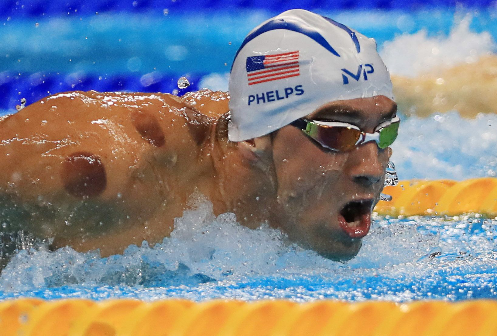 Michael Phelps competes at the Rio Olympicswith circular bruises from cuppingon his shoulders and back.