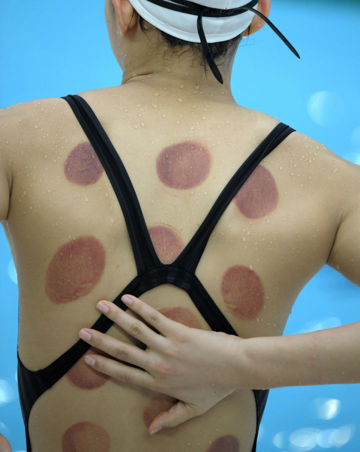 Chinese swimmer Wang Qun was seen with marks from a cupping treatment a few days before the start of the Beijing 2008 Olympic Games.