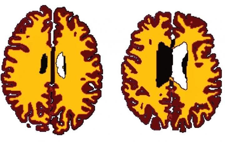 Comparison of grey matter (brown) and white matter (yellow) in sex-matched subjects A (56 years, BMI 19.5) and B (50 years, BMI 43.4).