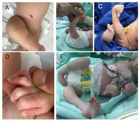 Infants with Zika-linked arthrogryposis are shown in the collage of photos.