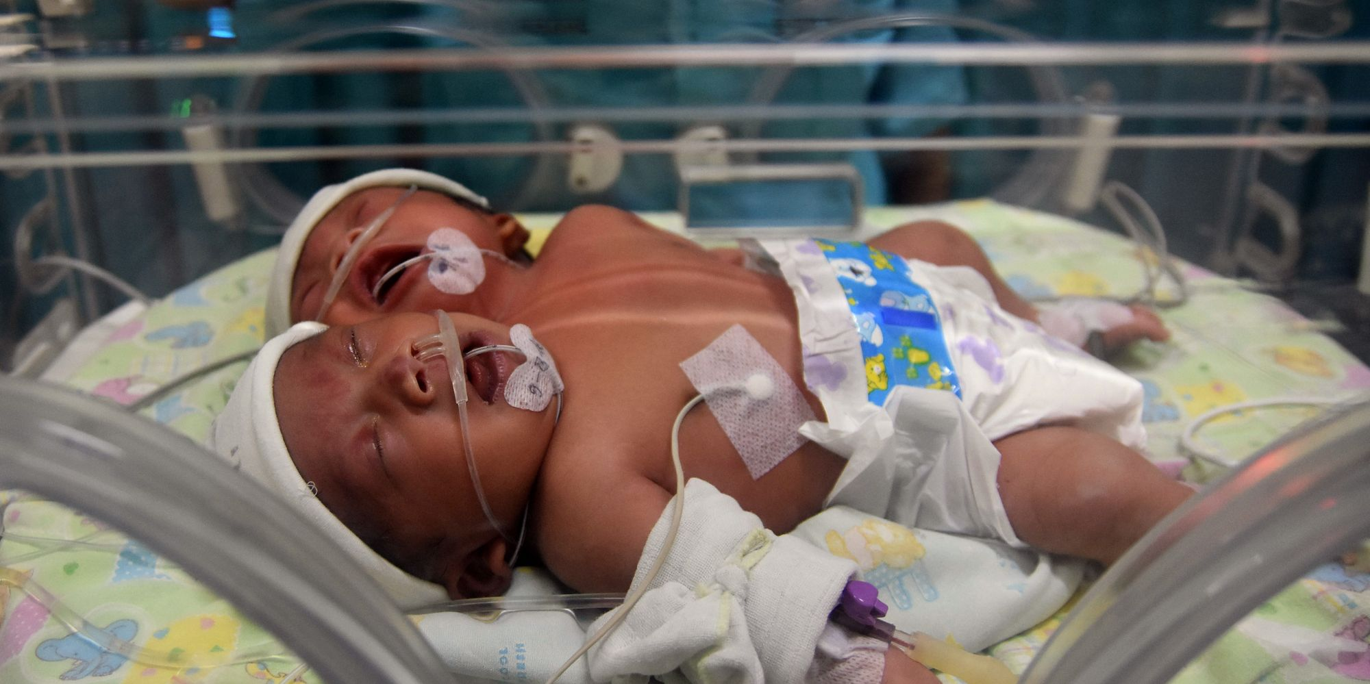 Two-Headed Baby Reportedly Born In Indonesia | HuffPost UK