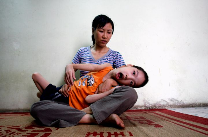 Ten-year-old Pham Duc Duy is cradled in the arms of his mother, Nguyen Thi Thanh Van, 35, in their house in Hanoi June 16, 2007. Vietnamese doctors believe Duy, whose grandfather served in the Vietnam war, is a victim of exposure to dioxin passed down the generations.