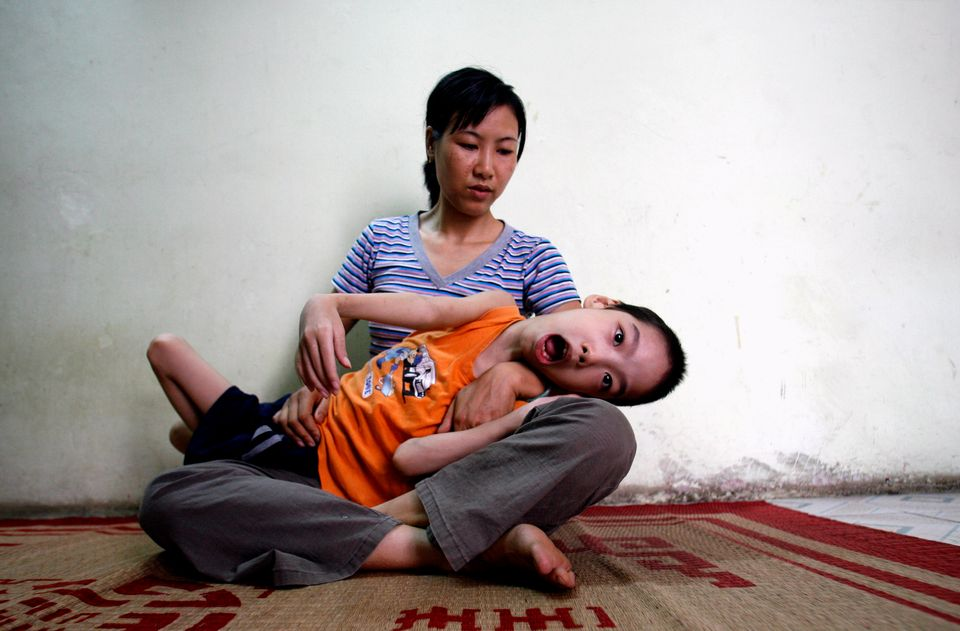 Ten-year-old Pham Duc Duy is cradled in the arms of his mother, Nguyen Thi Thanh Van, 35, in their house...