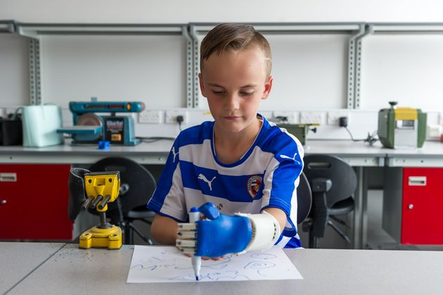 State-Of-The-Art Robotic Hand Given To 8-Year-Old Boy Who's An Aspiring