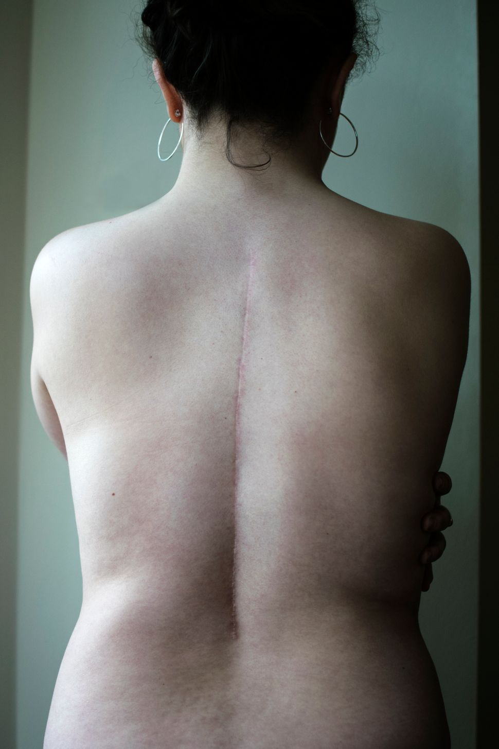 Floss, spinal fusion. February 14, 2011