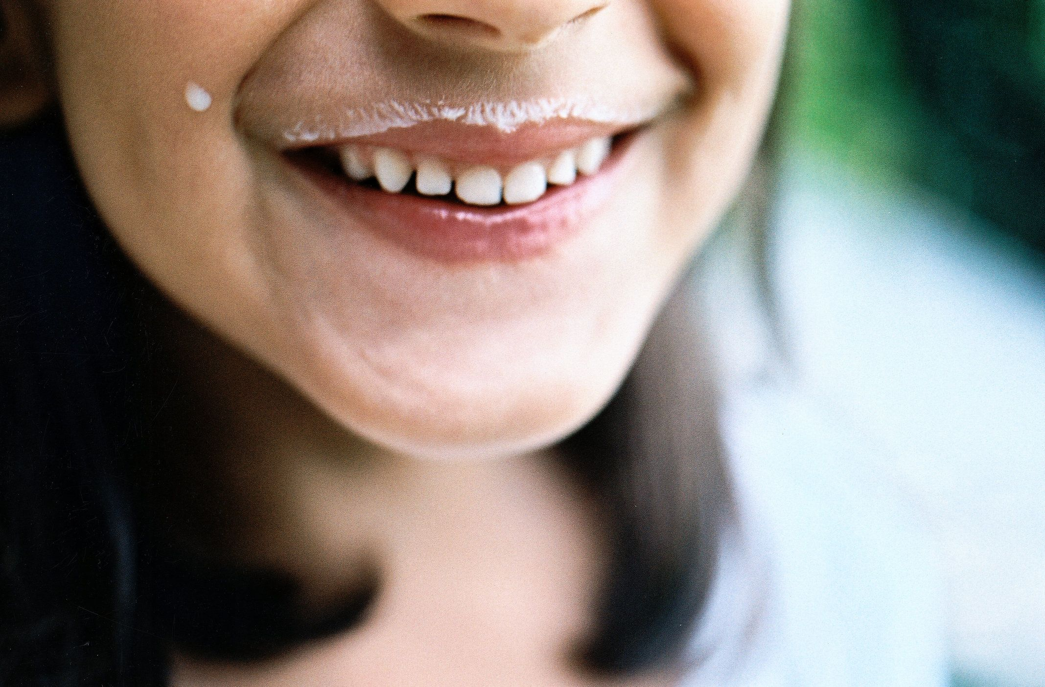 Caring For Milk Teeth: Everything Parents Need To